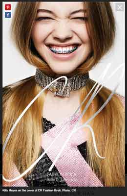 2015_07_11_Models_with_braces_web_01