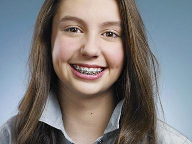 types-of-braces